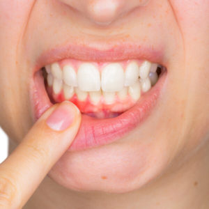 entzündetes Zahnfleisch Hausmittel