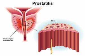 prostataentzuendung Hausmittel